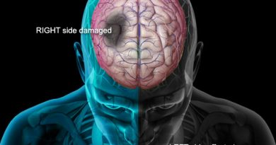 Symptoms and Treatments for Stroke