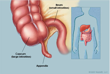 What is Appendicitis and why it occurs