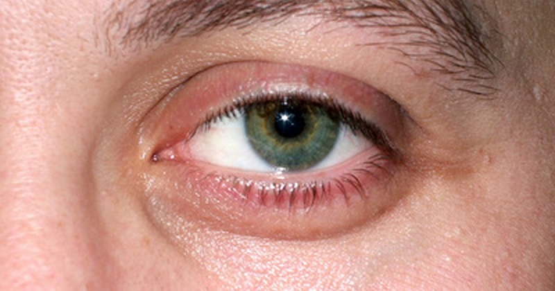 puffy eyelids